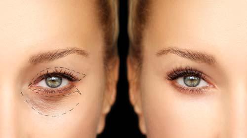 Sunekos to nr 1 w medycynie estetycznej jako produkt rewitalizujący dolinę łez oraz likwidujący cienie pod oczami